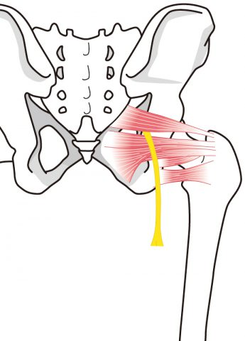 梨状筋、妊婦さん、マタニティ期、脚のしびれ、神経痛