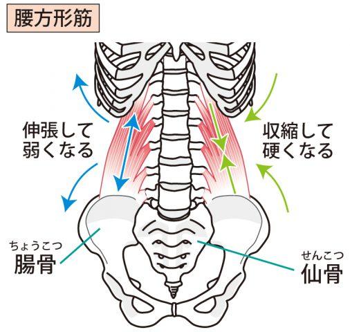 腰方形筋、妊娠、妊婦、マタニティ整体